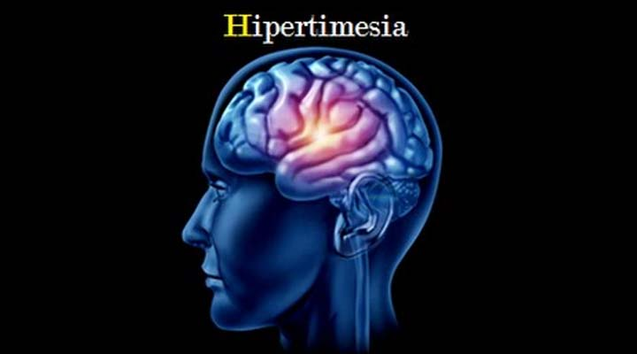 hipertimesia
