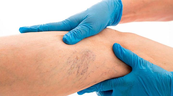 Picazón ardor y inferiores piernas